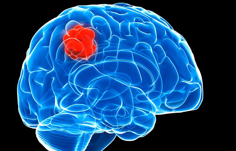 Причины и симптомы рака головного мозга