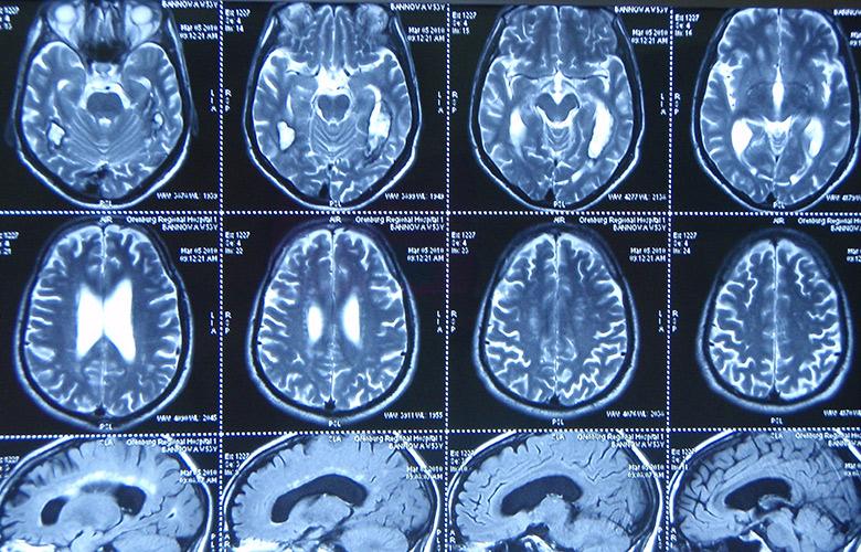 менингиома головного мозга лечение без операции