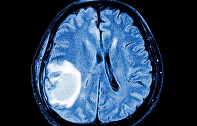 признаки рака мозга