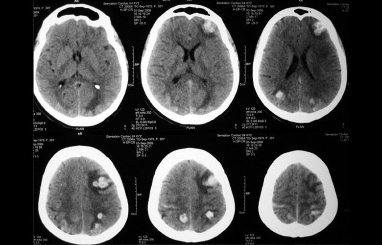 Метастазы в головном мозге при раке