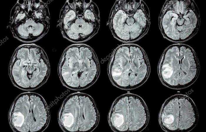 Сколько живут с опухолью головного мозга?