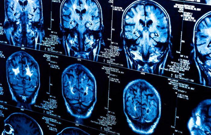 Сколько живут с раком мозга