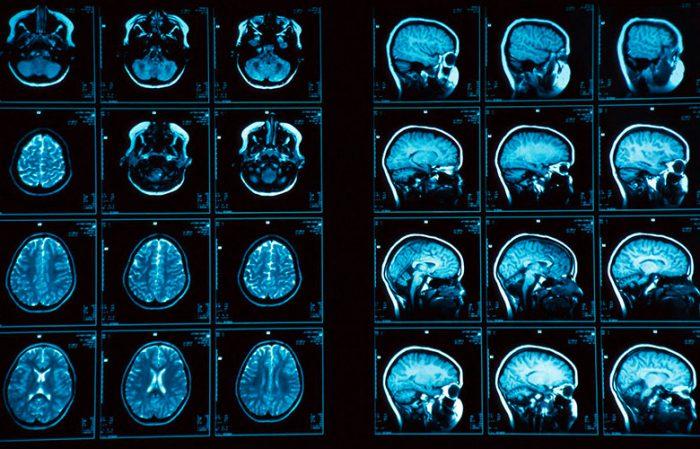 Микроаденома гипофиза головного мозга