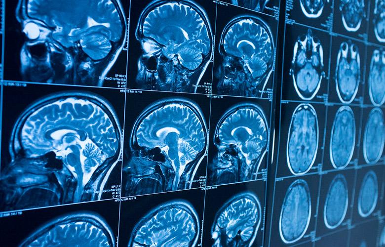 Рак головного мозга симптомы на ранних стадиях онкологии