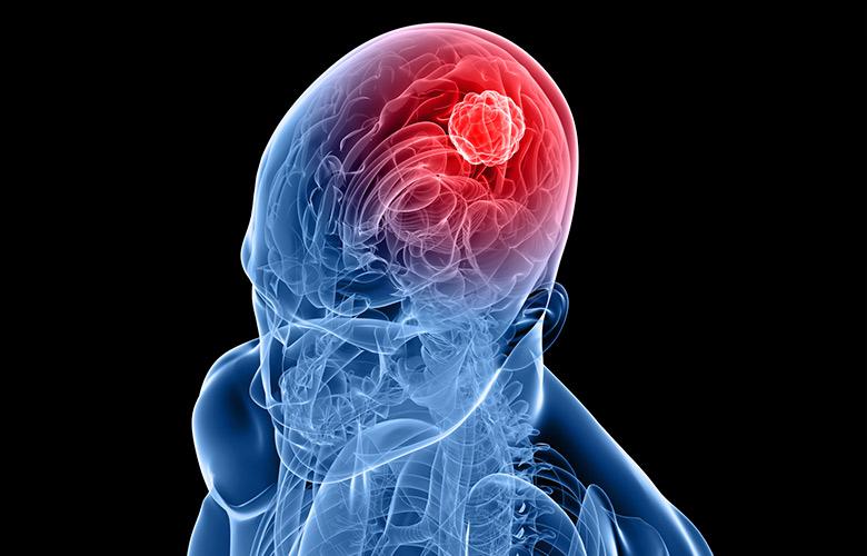 лекарство от опухоли головного мозга