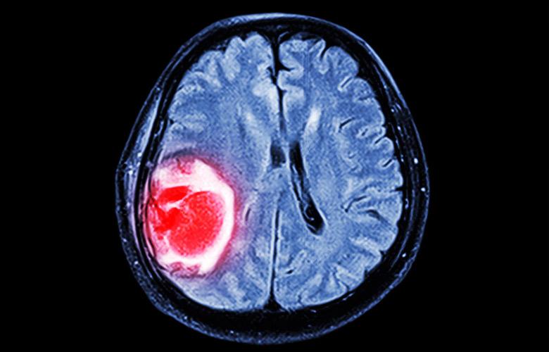 невринома лечение народными средствами