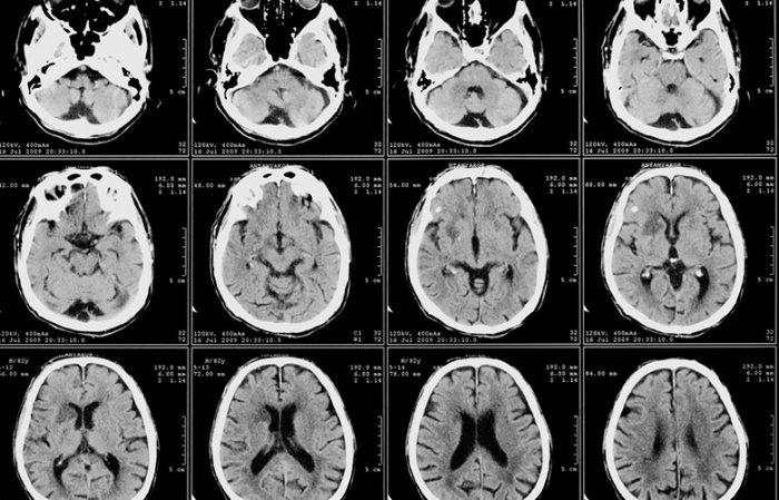 Опухоль лобной доли мозга симптомы