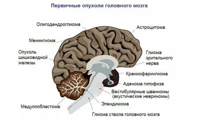 Опухоль головного мозга - это... Что такое Опухоль головного мозга?