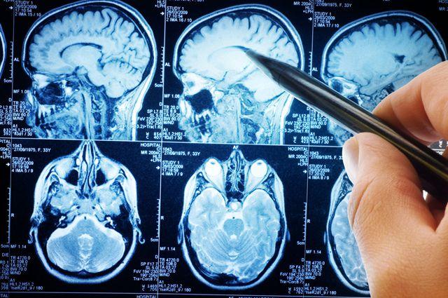 Злокачественная опухоль головного мозга - Всё об онкологии